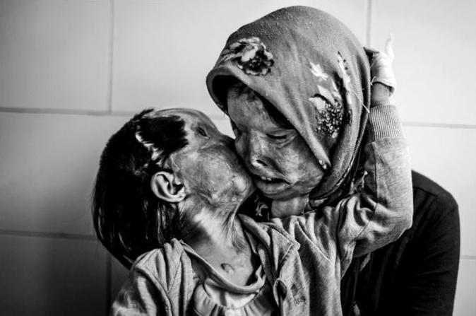 Matka a jej trojročná dcéra po útoku ich otca/manžela kyselinou.