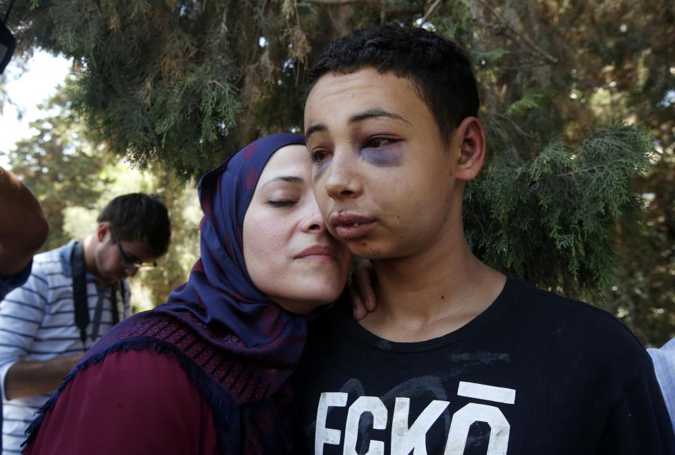 Tariq Khdeir je vítaný svojou matkou po tom, čo bol prepustený z väzenia v Jeruzaleme. 6.7.2014.