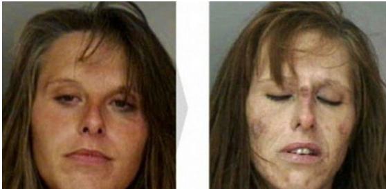30- 32 ročná Crystal bola už pár krát zatknutá za držanie kokaínu.