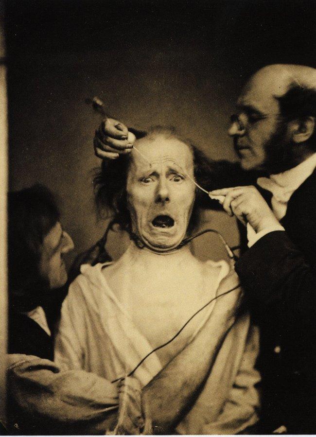Neurológ Duchenne de Boulogne v roku 1862 dáva do tváre muža elektrické výboje, aby mohol študovať svaly na jeho tvári.
