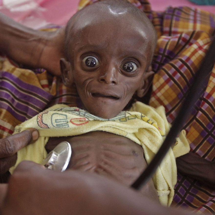 Africký chlapček bojuje s podvýživou.