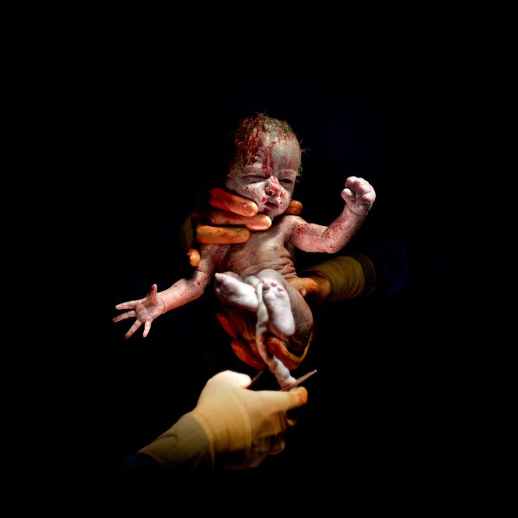 Leanne, narodená 8. apríla 2014 o 8:31 hod, 1,745 kg. Odfotená 13 sekúnd po pôrode.
