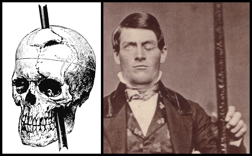 To čo prežil Phineas Gage sa dá považovať za neuveriteľný zázrak. V roku 1848 pracoval Phineas na stavbe železnice. V jednej chvíli nastav výbuch, ktorý spôsobil, že mu štvormetrová tyč prerazila lebku, presne tak, ako to je znázornené na fotografii. Lekári mu tyč dokázali odstrániť, avšak nie bez následkov. Phineas utrpel čiastočné ochrnutie ľavej strany tváre, oslepol na ľavé oko a trpel duševnými poruchami. Ale prežil!