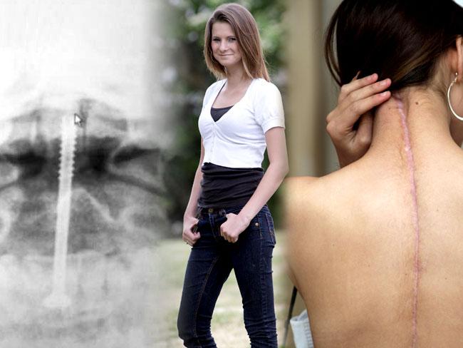 V roku 2009 utrpela Katrina Burgess pri autonehode rozsiahle zlomeniny a zranenia chrbtice. Lekári jej dali kosti dokopy pomocou 11. titánových kolíkov, ktoré mala v krku, chrbtici a nohách. Je až neuveriteľné, že sa po piatich mesiacoch úplne zotavila a dnes pracuje pre modelingovú agentúru.