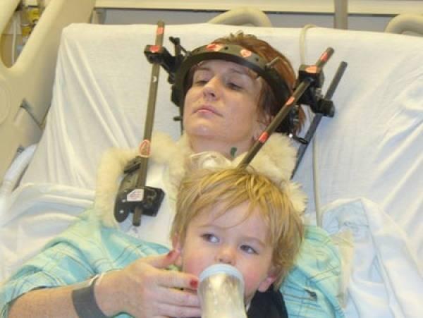 """Tomuto príbehu sa nám nechce veriť. V roku 2007 Shannon Malloy prekonala autonehodu, po ktorej sa jej lebka oddelila od tela. Jej miecha však zostala nepoškodená. Podľa jej výpovede si pamätá, že svoju hlavu vôbec nevedela ovládať a hýbať s ňou. Toto zranenie je známe ako """"interné oddelenie hlavy"""". V nemocnici jej do hlavy a krk spojili spolu deviatimi skrutkami. Stále má problémy s prehĺtaním, má poškodené očné nervy, ale žije a stále pracuje na tom, aby sa jej zdravotný stav zlepšil."""