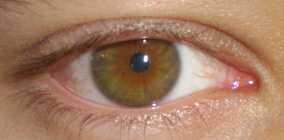 eye-colour6